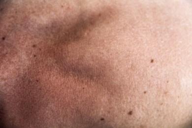 peau épaule