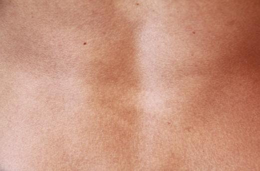 peau dos